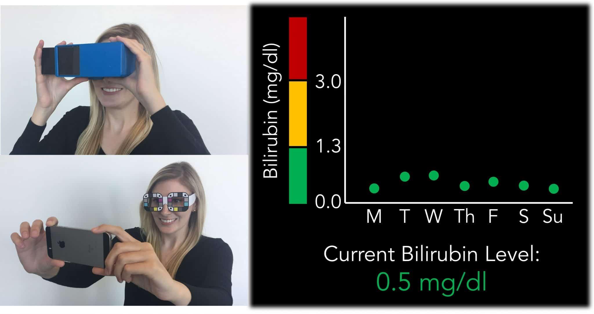 Detección bilirrubina a través del móvil