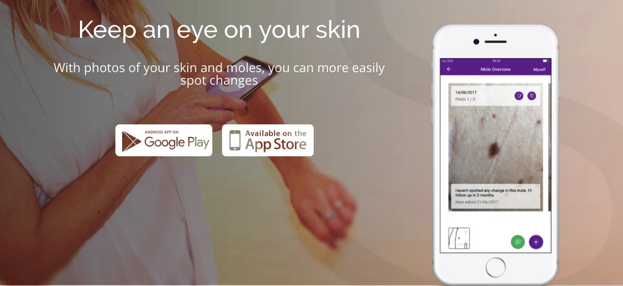 App Misskin para seguimiento de lunares en la piel